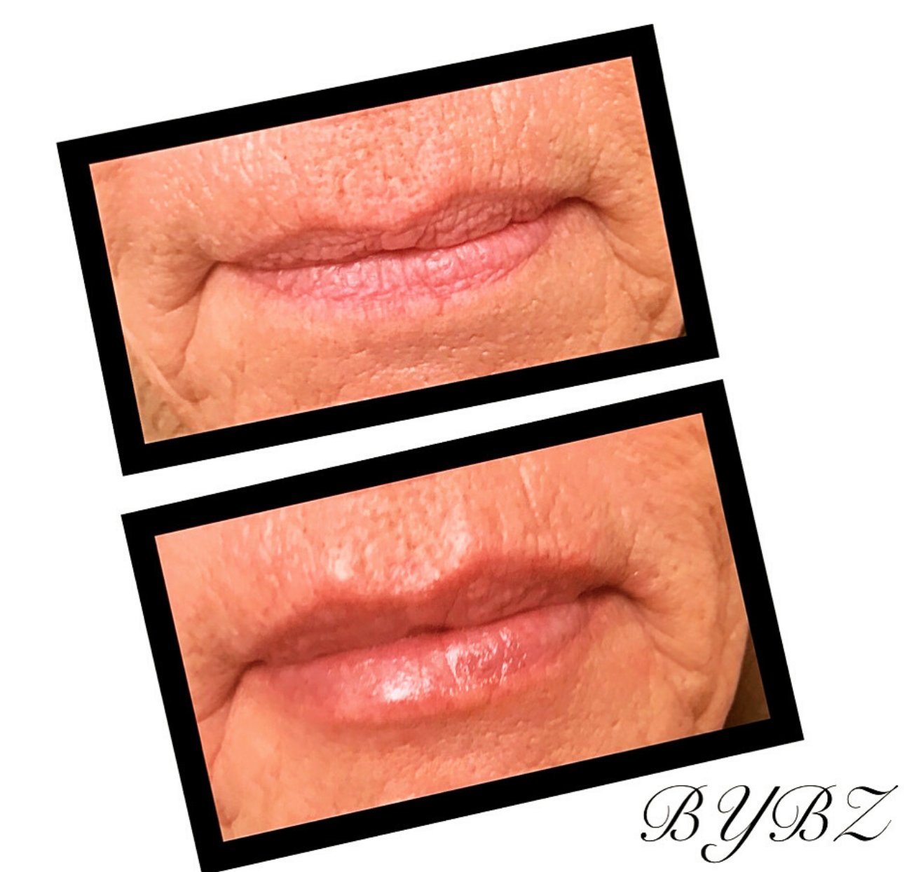 Lip Enhancements Hudson Valley